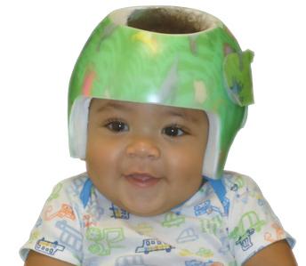 cranial-remolding, Infant Helmets, Cranial helmets