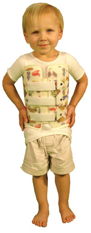 Pediatric Back Braces & Spinal Support