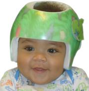 Cranial remolding, Cranial baby helmets