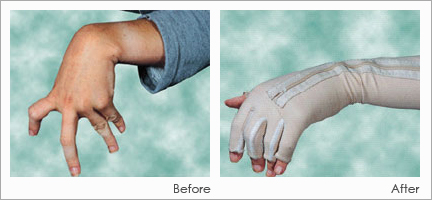 DMO-hand movement glove