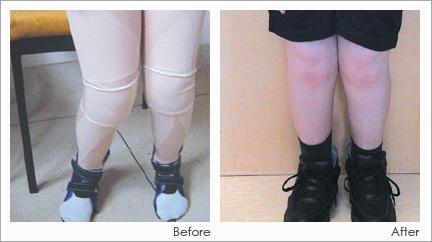 DMO-leggings